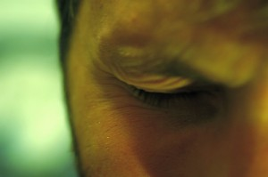MYOKYMIA IS NOT A HAWAIIAN ISLAND- EYELID TWITCHING AND EYE SPASMS, WWW.B12PATCH.COM